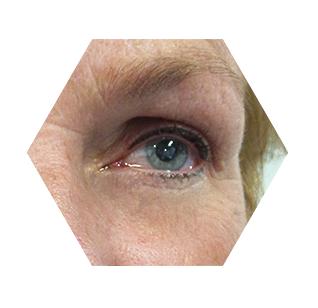 oog3 (1)